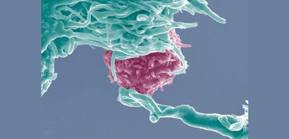 o-cancer-so-se-desenvolve-se-tiver-terreno-fertil-fotodestaque