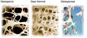Osteopenia ou osteoporose